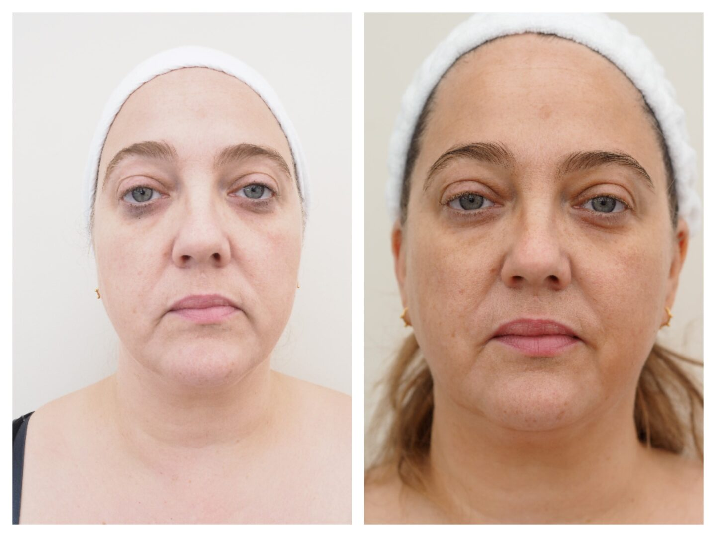 Before and after elemis pro definition