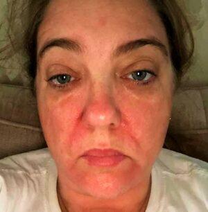 allergic reaction to fragrance